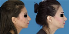 Houston Rhinoplasty